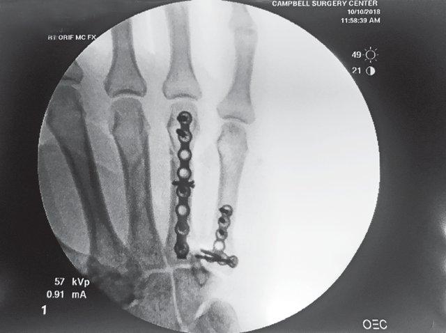 Implants-cc.png