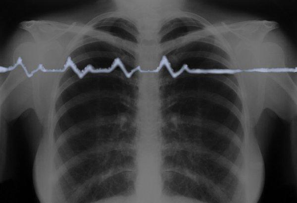 SmokeSignals2.jpg
